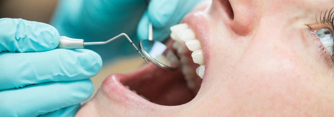 pacjentka na kontroli zębów